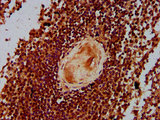 Immunohistochemistry Dilution at 1:300 and staining in paraffin-embedded human spleen tissue performed on a Leica BondTM system. After dewaxing and hydration, antigen retrieval was mediated by high pressure in a citrate buffer (pH 6.0). Section was blocked with 10% normal Goat serum 30min at RT. Then primary antibody (1% BSA) was incubated at 4°C overnight. The primary is detected by a biotinylated Secondary antibody and visualized using an HRP conjugated SP system.