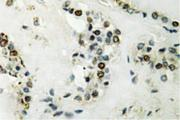 IHC of Cyclin E2 (N387) pAb in paraffin-embedded human thyroid gland tissue.