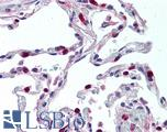 Anti-CCR1 antibody IHC of human lung. Immunohistochemistry of formalin-fixed, paraffin-embedded tissue after heat-induced antigen retrieval. Antibody LS-B2022 concentration 5 ug/ml.