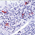 Formalin-fixed, paraffin-embedded human tonsil stained with peroxidase-conjugate and AEC chromogen. Note membrane staining of interdigitating cells of stratified squamous epithelium of tonsil. This image was taken for the unmodified form of this product. Other forms have not been tested.