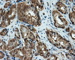 IHC of paraffin-embedded Carcinoma of prostate tissue using anti-CUGBP1 mouse monoclonal antibody. (Dilution 1:50).