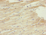 Immunohistochemistry of paraffin-embedded human heart tissue at dilution of 1:100