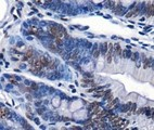 Immunohistochemistry: Chd7 Antibody - IHC of CHD7 in mouse intestine using DAB with hematoxylin counterstain.  This image was taken for the unconjugated form of this product. Other forms have not been tested.