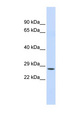 CTRC / Chymotrypsin antibody LS-C101467 Western blot of Fetal Liver lysate.  This image was taken for the unconjugated form of this product. Other forms have not been tested.