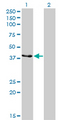 Western Blot analysis of CKMT1B expression in transfected 293T cell line by CKMT1B monoclonal antibody (M04), clone 2C8.Lane 1: CKMT1B transfected lysate(47 KDa).Lane 2: Non-transfected lysate.