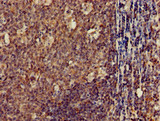 Immunohistochemistry of paraffin-embedded human tonsil tissue using CSB-PA005491LA01HU at dilution of 1:100