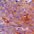 Immunohistochemical analysis of Collagen 1 alpha 2 staining in human breast cancer formalin fixed paraffin embedded tissue section. The section was pre-treated using heat mediated antigen retrieval with sodium citrate buffer (pH 6.0). The section was then incubated with the antibody at room temperature and detected using an HRP conjugated compact polymer system. DAB was used as the chromogen. The section was then counterstained with hematoxylin and mounted with DPX.