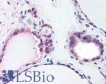 Anti-COPS2 antibody IHC of human thyroid. Immunohistochemistry of formalin-fixed, paraffin-embedded tissue after heat-induced antigen retrieval. Antibody LS-B2751 concentration 75 ug/ml.