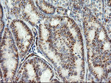 IHC of paraffin-embedded Carcinoma of Human thyroid tissue using anti-COPS6 mouse monoclonal antibody.