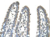 CPS1 antibody LS-C80754 was used in IHC to stain formalin-fixed, paraffin-embedded human intestine.  This image was taken for the unconjugated form of this product. Other forms have not been tested.