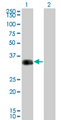 Western Blot analysis of CRX expression in transfected 293T cell line by CRX monoclonal antibody (M01), clone F6-C2.Lane 1: CRX transfected lysate(32.261 KDa).Lane 2: Non-transfected lysate.