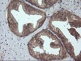 IHC of paraffin-embedded Human prostate tissue using anti-CRYAA mouse monoclonal antibody. (Heat-induced epitope retrieval by 10mM citric buffer, pH6.0, 100C for 10min).