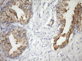 IHC of paraffin-embedded Human prostate tissue using anti-CSF2RB mouse monoclonal antibody. (Heat-induced epitope retrieval by Tris-EDTA, pH8.0)(1:150).