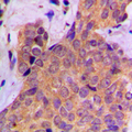 Immunohistochemical analysis of Cortactin (pY421) staining in human breast cancer formalin fixed paraffin embedded tissue section. The section was pre-treated using heat mediated antigen retrieval with sodium citrate buffer (pH 6.0). The section was then incubated with the antibody at room temperature and detected using an HRP conjugated compact polymer system. DAB was used as the chromogen. The section was then counterstained with hematoxylin and mounted with DPX.