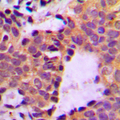 Immunohistochemical analysis of Cortactin (pY466) staining in human breast cancer formalin fixed paraffin embedded tissue section. The section was pre-treated using heat mediated antigen retrieval with sodium citrate buffer (pH 6.0). The section was then incubated with the antibody at room temperature and detected using an HRP conjugated compact polymer system. DAB was used as the chromogen. The section was then counterstained with hematoxylin and mounted with DPX.
