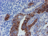 IHC of paraffin-embedded Adenocarcinoma of Human endometrium tissue using anti-CYB5R1 mouse monoclonal antibody. (Heat-induced epitope retrieval by 10mM citric buffer, pH6.0, 100C for 10min).