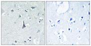 Immunohistochemistry Image