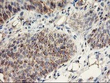 IHC of paraffin-embedded Carcinoma of Human bladder tissue using anti-DAND5 mouse monoclonal antibody.