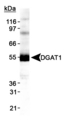 Detection of DGAT1 in HepG2 lysate.  This image was taken for the unconjugated form of this product. Other forms have not been tested.