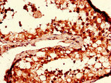 Immunohistochemistry of paraffin-embedded human testis tissue using CSB-PA850407LA01HU at dilution of 1:100