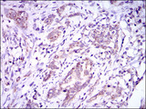 IHC of paraffin-embedded cervical cancer tissues using DNAL4 mouse monoclonal antibody with DAB staining.