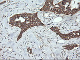 IHC of paraffin-embedded Carcinoma of Human bladder tissue using anti-DNM1L mouse monoclonal antibody.