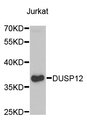 Western blot analysis of extracts of Jurkat cells.