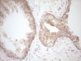 IHC of paraffin-embedded Carcinoma of Human prostate tissue using anti-DVL2 mouse monoclonal antibody. (Heat-induced epitope retrieval by 1 mM EDTA in 10mM Tris, pH8.5, 120°C for 3min).