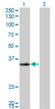 Western Blot analysis of ECH1 expression in transfected 293T cell line by ECH1 monoclonal antibody (M01), clone 5G8.Lane 1: ECH1 transfected lysate(35.8 KDa).Lane 2: Non-transfected lysate.