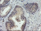 IHC of paraffin-embedded Carcinoma of Human prostate tissue using anti-TIGD1 mouse monoclonal antibody. (Heat-induced epitope retrieval by 10mM citric buffer, pH6.0, 100C for 10min).