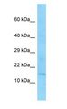 EIF1 antibody Western Blot of MCF7 cell lysate.  This image was taken for the unconjugated form of this product. Other forms have not been tested.