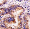 Formalin-fixed and paraffin-embedded human lung carcinoma tissue reacted with EIF2AK1 antibody , which was peroxidase-conjugated to the secondary antibody, followed by DAB staining. This data demonstrates the use of this antibody for immunohistochemistry; clinical relevance has not been evaluated.