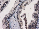 IHC of paraffin-embedded Human prostate tissue using anti-EIF4E2 mouse monoclonal antibody.