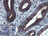 IHC of paraffin-embedded Human endometrium tissue using anti-EPN2 mouse monoclonal antibody. (Heat-induced epitope retrieval by 10mM citric buffer, pH6.0, 100C for 10min).