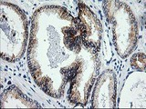 IHC of paraffin-embedded Carcinoma of Human prostate tissue using anti-ERCC4 mouse monoclonal antibody.