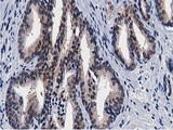 IHC of paraffin-embedded Carcinoma of Human prostate tissue using anti-TACC3 mouse monoclonal antibody.