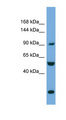 EXOC1 antibody LS-C117276 Western blot of HeLa lysate.  This image was taken for the unconjugated form of this product. Other forms have not been tested.