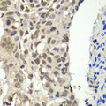Immunohistochemistry of paraffin-embedded human esophageal cancer tissue.