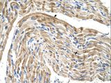 FADS1 antibody LS-C40383 was used in IHC to stain formalin-fixed, paraffin-embedded human muscle.  This image was taken for the unconjugated form of this product. Other forms have not been tested.
