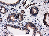 IHC of paraffin-embedded Carcinoma of Human prostate tissue using anti-FAM127C mouse monoclonal antibody.