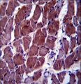 FIZ1 Antibody immunohistochemistry of formalin-fixed and paraffin-embedded human skeletal muscle followed by peroxidase-conjugated secondary antibody and DAB staining.