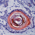 Formalin-fixed, paraffin-embedded human skin stained with peroxidase-conjugate and AEC chromogen. Note cytoplasmic staining of keratinized epithelial cells of hair follicle.  This image was taken for the unmodified form of this product. Other forms have not been tested.