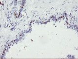 IHC of paraffin-embedded Human prostate tissue using anti-FOXI1 mouse monoclonal antibody.