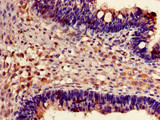 Immunohistochemistry of paraffin-embedded human ovarian cancer using CSB-PA009087LA01HU at dilution of 1:100