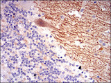IHC of paraffin-embedded cerebellum tissues using GABBR2 mouse monoclonal antibody with DAB staining.