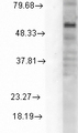 Western blot analysis of GABA(A)R Delta in rat cell line mix using a 1:1000 dilution of GABRD antibody.  This image was taken for the unconjugated form of this product. Other forms have not been tested.