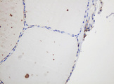 IHC of paraffin-embedded Human thyroid tissue using anti-GAPDHS mouse monoclonal antibody.