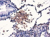 IHC of paraffin-embedded Carcinoma of Human lung tissue using anti-GAS7 mouse monoclonal antibody.