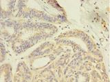 Immunohistochemistry of paraffin-embedded human breast cancer using antibody at 1: 100 dilution.  This image was taken for the unconjugated form of this product. Other forms have not been tested.