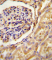GNAT2 antibody immunohistochemistry of formalin-fixed and paraffin-embedded human Kidney tissue followed by peroxidase-conjugated secondary antibody and DAB staining.